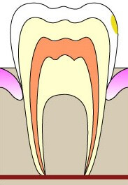 Поверхностные кариес в виде пятна на зубе